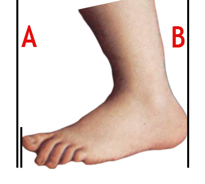 A typical foot